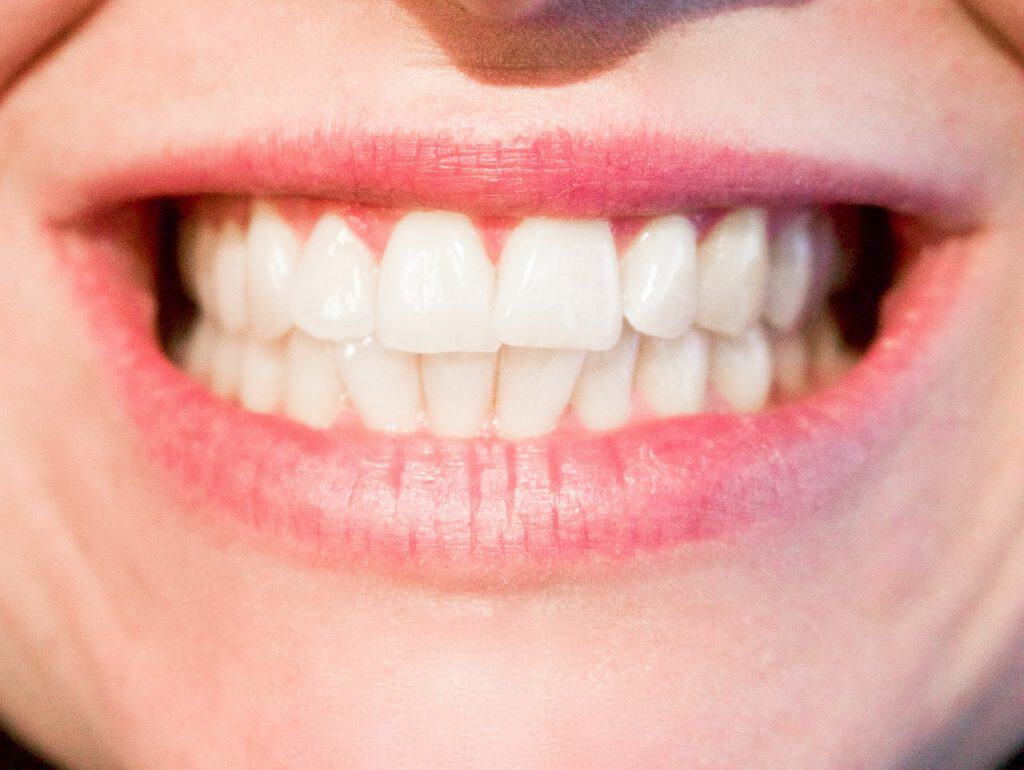 Cold Sores – What Are They & How To Treat Them?