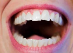 Cut Up Gums? What To Do, Healthiness & Healing