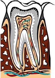 The 10 Causes Of Persistent Tooth Pain After Filling