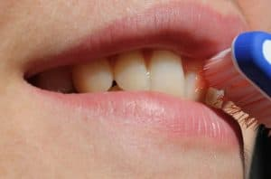 How To Get Rid Of The Black Spots On Your Teeth?