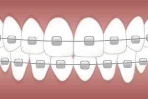how much do braces cost for adults