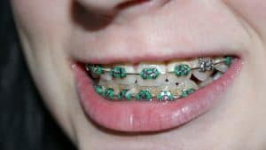 toothbrush for braces