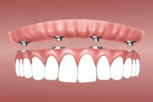 tooth implant vs bridge